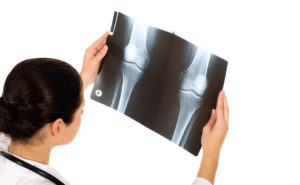 Knee Replacement Surgery Alternatives