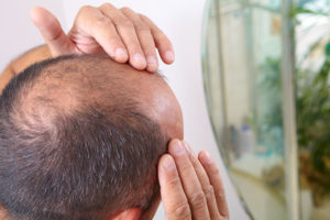 PRP for Hair Loss treatment in Cincinnati